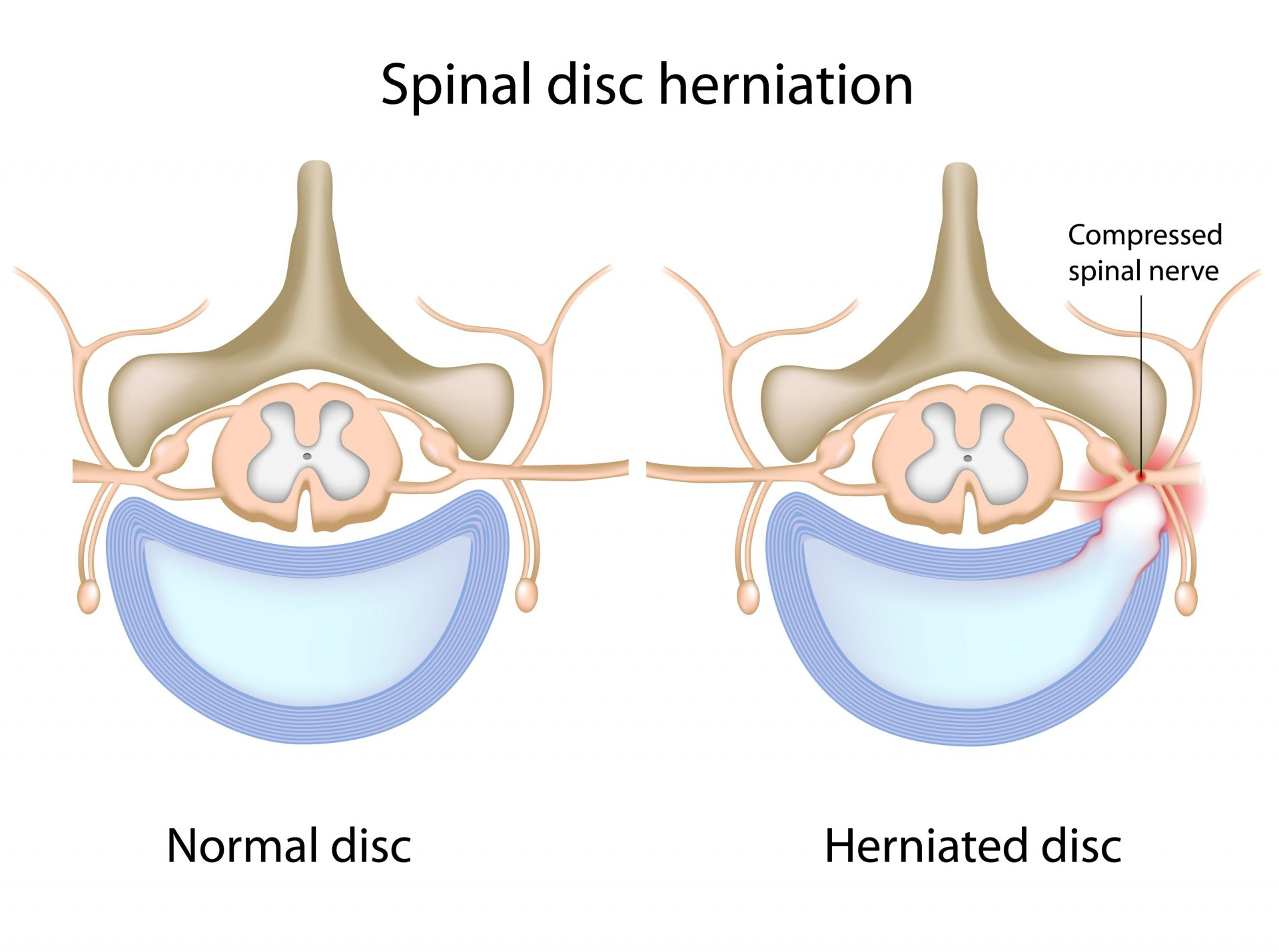 spinal-disc-herniation